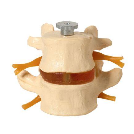 vertebras-lombares-anatomic-02-pecas.centermedical.com.br