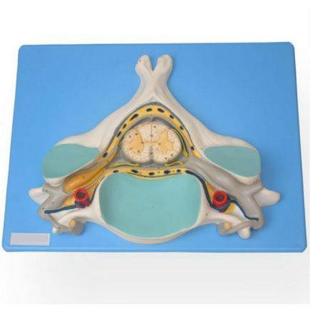 quinta-vertebra-cervical-com-medula-espinhal-e-nervos.centermedical.com.br