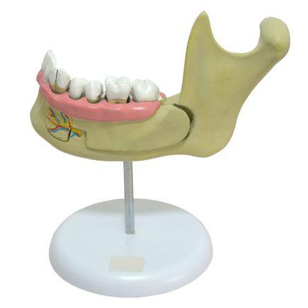 anatomia-do-dente-anatomic-c-6-partes.centermedical.com.br