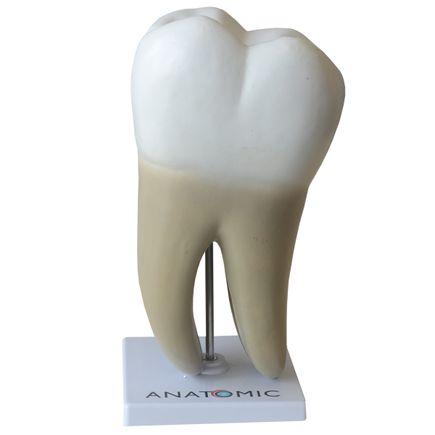dente-molar-ampliado-08-partes-com-evolucao-da-carie.centermedical.com.br