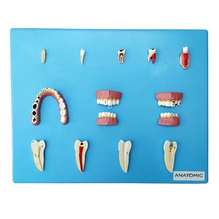patologia-dentaria-com-12-pecas.centermedical.com.br